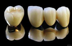 Kinh nghiệm bọc răng sứ cực kỳ hữu ích cho mọi người