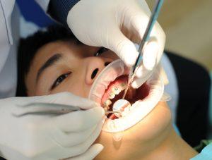 Niềng răng mắc cài kim loại 6