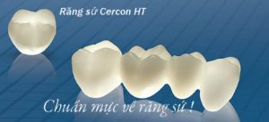 Bọc răng sứ Zirconia