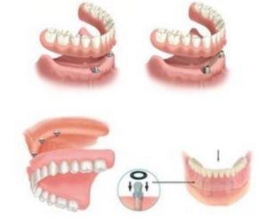 Cấy ghép mini implant