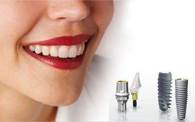Giá cấy ghép răng implant