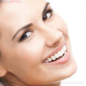 Giá chỉnh nha niềng răng