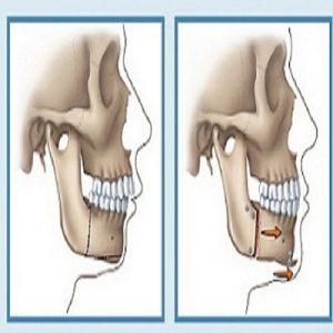 Phẫu thuật hàm hô
