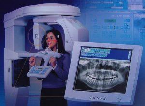 Phẫu thuật vẩu hàm trên