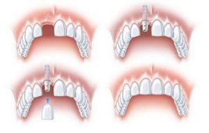 Trồng răng Implant không đau