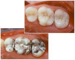 Ưu điểm của bọc răng sứ