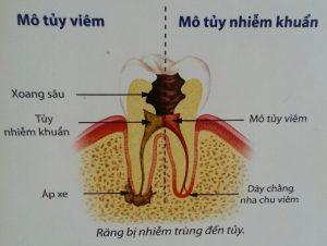 Điều trị tủy răng