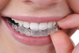 Invisalign phương pháp niềng răng của người hiện đại