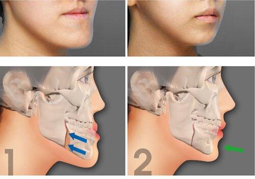 Phẫu thuật hàm hô 2