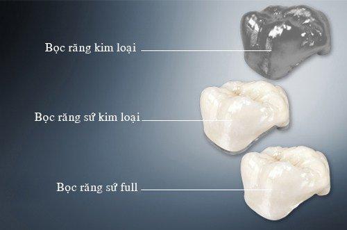 Răng sứ thẩm mỹ 2