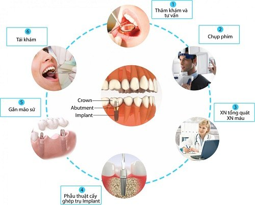 Trồng răng thẩm mỹ – Kỹ thuật phục hình răng đã mất 2