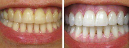 Làm trắng răng tại nha khoa an toàn và nhanh chóng 1