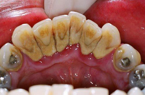 Làm trắng răng tại nha khoa an toàn và nhanh chóng 2