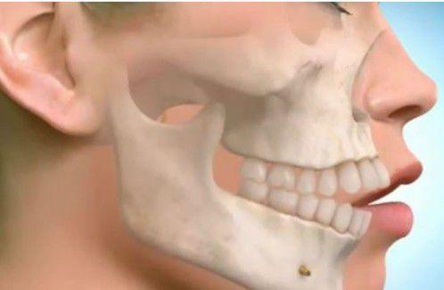 Chỉnh nha niềng răng 1