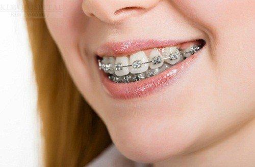 Chỉnh nha niềng răng 3