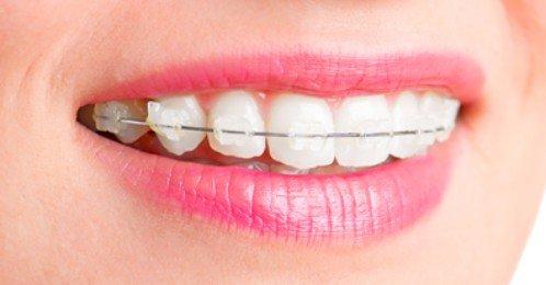 Niềng răng mắc cài sứ giá bao nhiêu? 1
