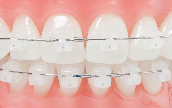 Niềng răng mắc cài sứ giá bao nhiêu? 2