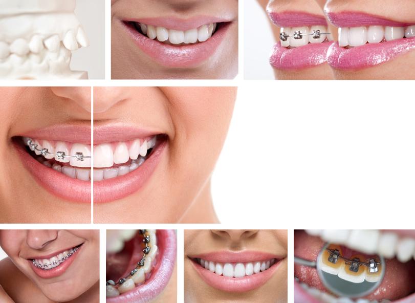 Thời gian niềng răng mất bao lâu để có kết quả đẹp? 1