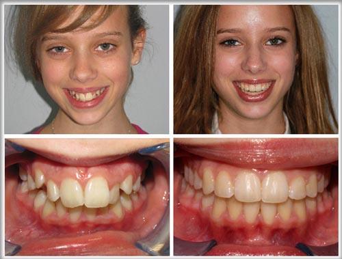 Thời gian niềng răng mất bao lâu để có kết quả đẹp? 2