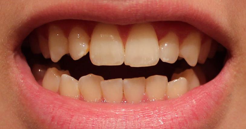 Tẩy trắng răng bị nhiễm Tetracycline 1