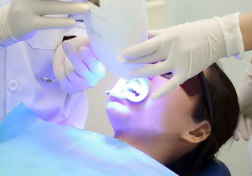 Tẩy trắng răng bị nhiễm Tetracycline 2