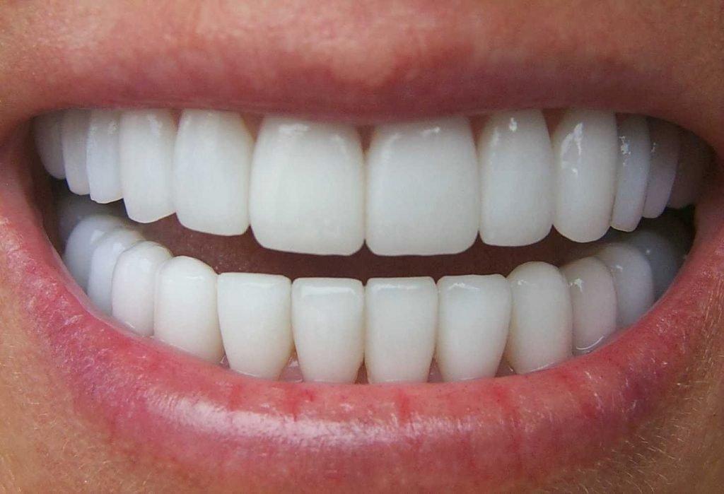 Tẩy trắng răng bị nhiễm Tetracycline 3