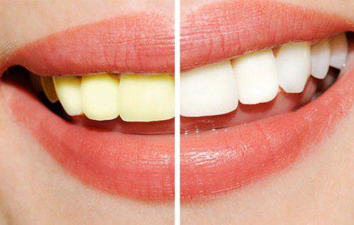 Công nghệ tẩy trắng răng Laser Whitening 1