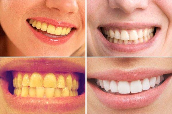 Công nghệ tẩy trắng răng Laser Whitening 3