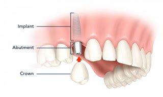 Cấy ghép Implant có đau không? 1