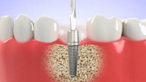 Chi phí làm răng giả cố định 2