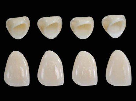 Các loại răng sứ cao cấp hiện nay 2