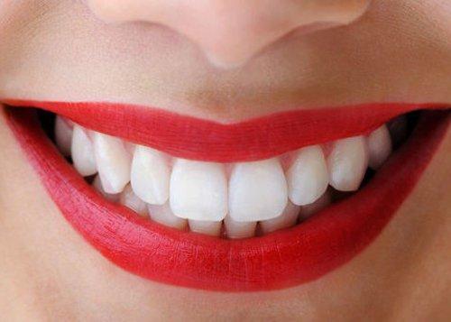 Các loại răng sứ cao cấp hiện nay 3