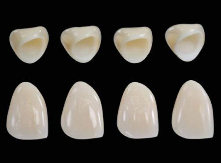 Răng sứ không kim loại là gì? 2