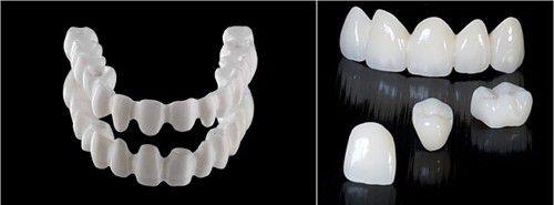 Răng sứ không kim loại là gì? 3