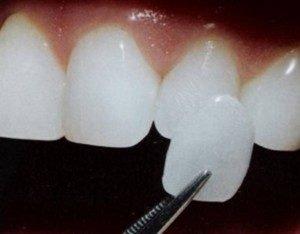 Làm răng sứ Veneer có tốt không? 1
