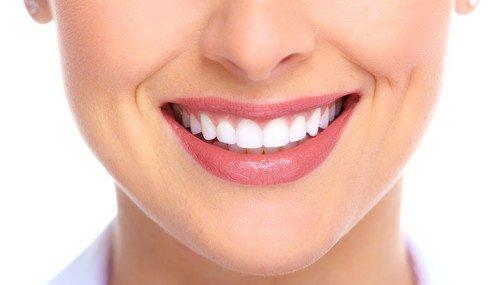 Làm răng sứ Veneer có tốt không? 2