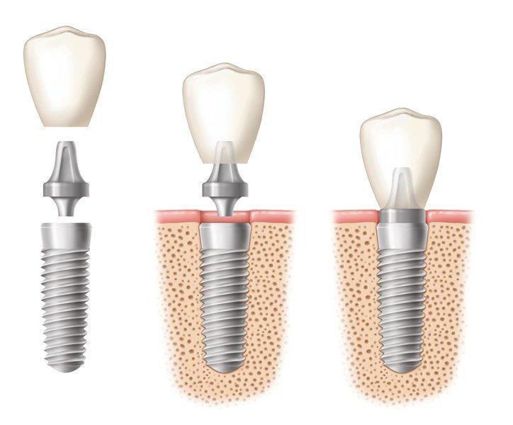 Thời gian cấy ghép Implant trong bao lâu? 2