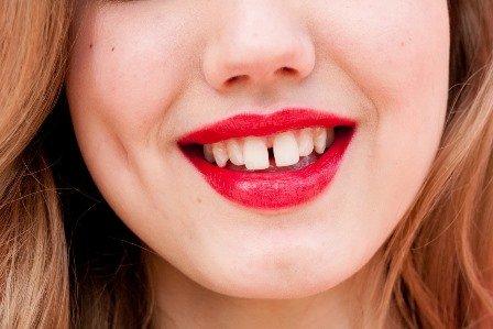 Bọc răng sứ cho răng bị thưa 1