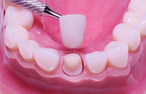 Bọc răng sứ cho răng bị thưa 2