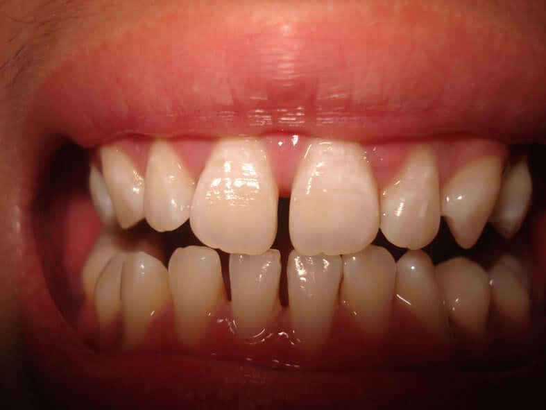 Bọc răng sứ cho răng bị thưa 4