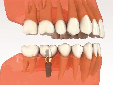 Chi phí cấy ghép implant 1