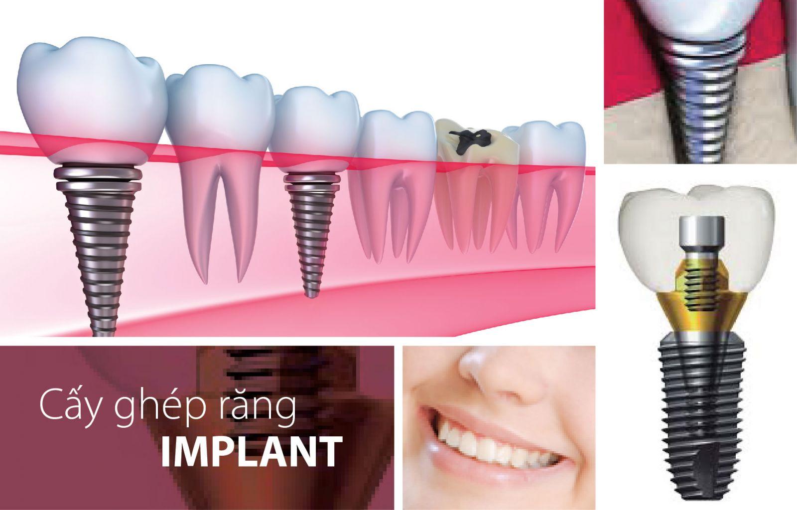 Implant răng hàm 2