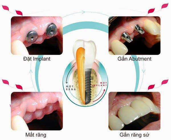 Implant răng hàm 3