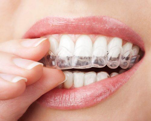 Niềng răng không mắc cài invisalign 1