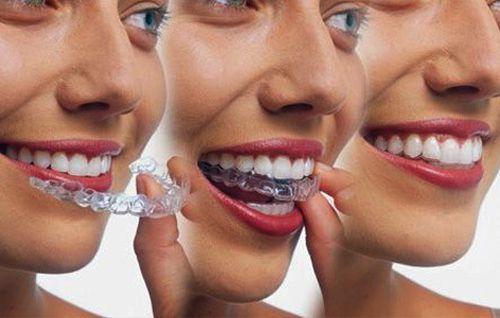 Niềng răng không mắc cài invisalign 2