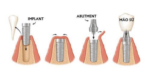 Quy trình cấy ghép răng implant 1