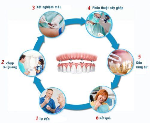 Quy trình cấy ghép răng implant 2