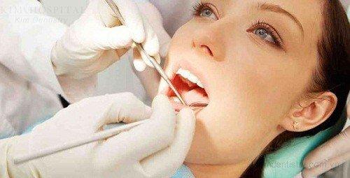 Bọc răng sứ cho răng hàm 3