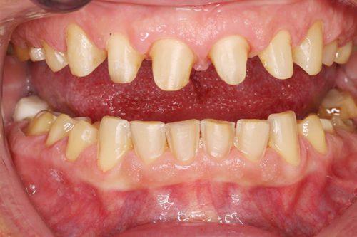 Bọc răng sứ cho răng hàm 4