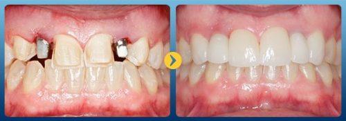 Chăm sóc răng sau cấy ghép implant 1